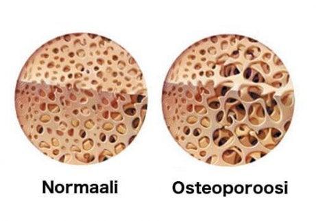 Osteoporoosi heikentää luuta.