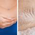 Kuiva iho kyynärpäissä ja kantapäissä