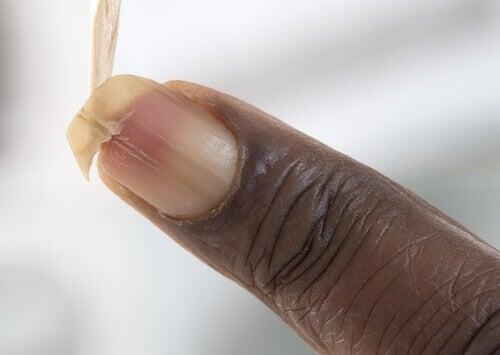 Vahvista hauraita kynsiä