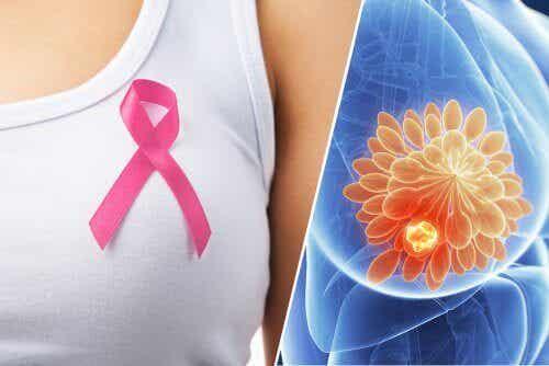 10 rintasyövän varoitusmerkkiä