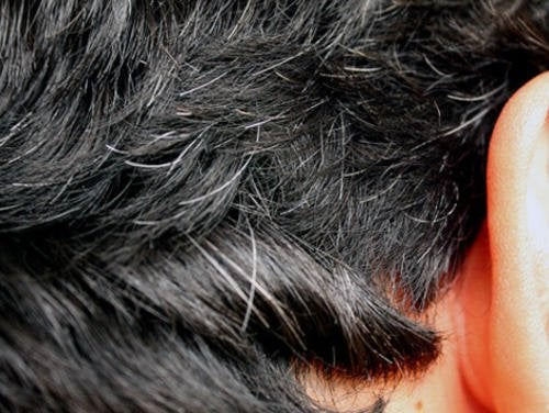 6 hoitokeinoa hiusten ennenaikaiseen harmaantumiseen