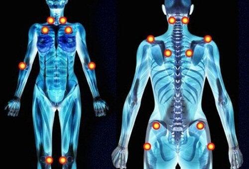 fibromyalgia voi olla syynä kipuun raajoissa