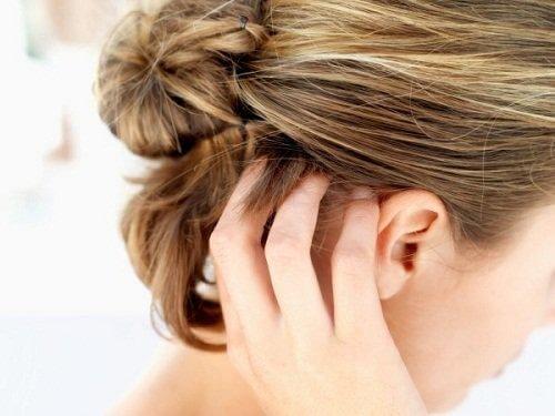 näin pidät huolta päänahastasi