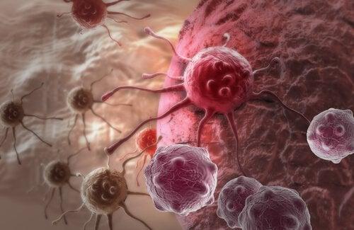 syöpäsolut - kilpirauhassyöpä
