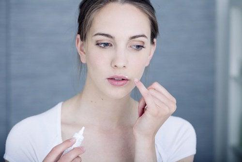 huuliherpeksestä eroon