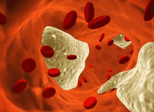 kolesteroli veressä