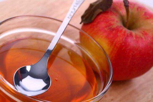 6 luonnollista hoitoa niveltulehdukseen - omenaviinietikka.