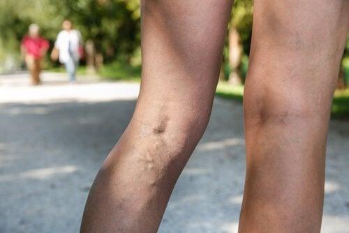 Taikapähkinä voi auttaa helpottamaan suonikohjujen aiheuttamaa paineen tunnetta jaloissa.