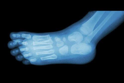 kantaluupiikin aiheuttajat ja hoito röntgen