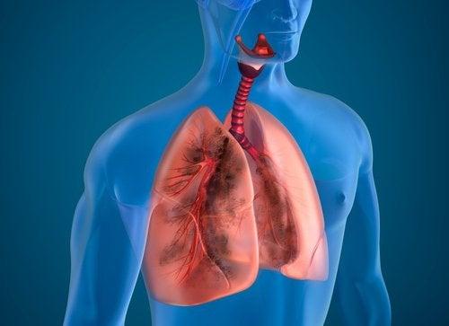 Tupakoitsijan keuhkot