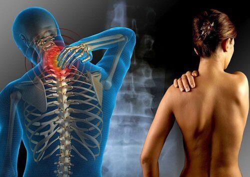 Gluteeniallergia voi aiheuttaa fibromyalgiaa