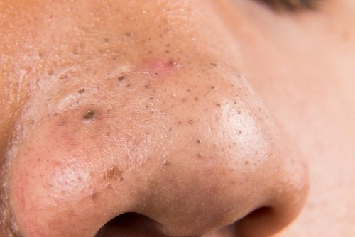 Mustapäät nenässä