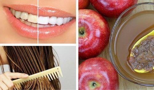 8 käyttöä omenaviinietikalle kauneudenhoidossa