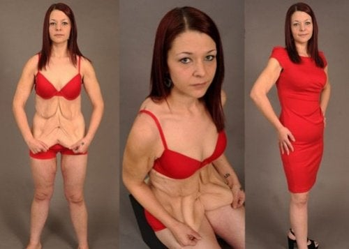 Pudota painoa roikkuva iho