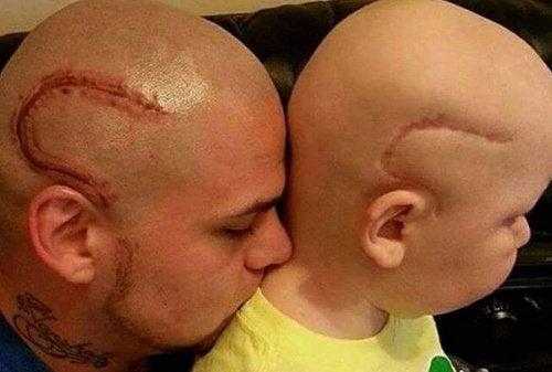 """""""Nyt me näytämme samalta"""" – isä tatuoi poikansa syöpäleikkausarven"""