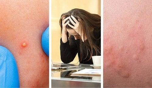 7 asiaa, joista huomaat että stressitasosi on liian korkealla