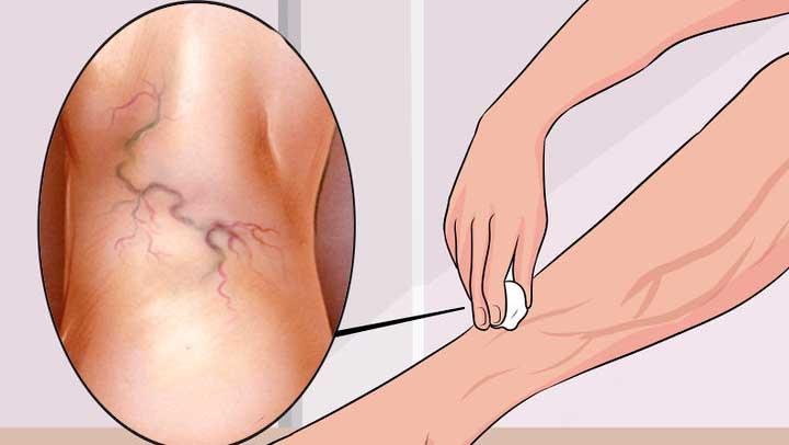 Fenkolitee auttaa jalkojen nesteturvotus