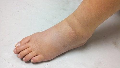 turvotus nilkassa ja jalassa