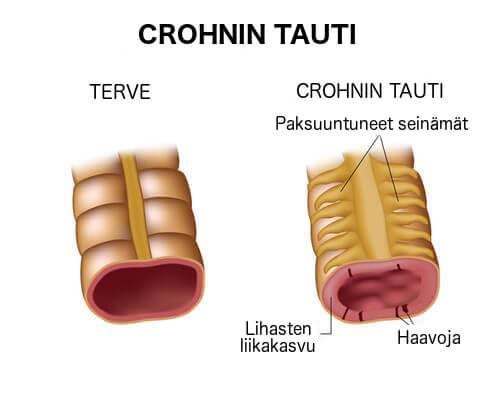 Crohnin tauti