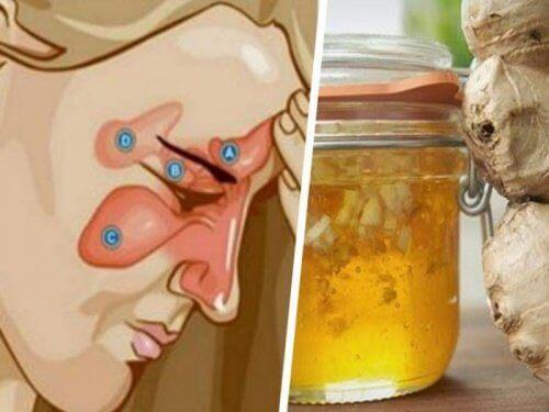 Lievennä poskiontelotulehduksen oireita inkiväärillä ja omenaviinietikalla