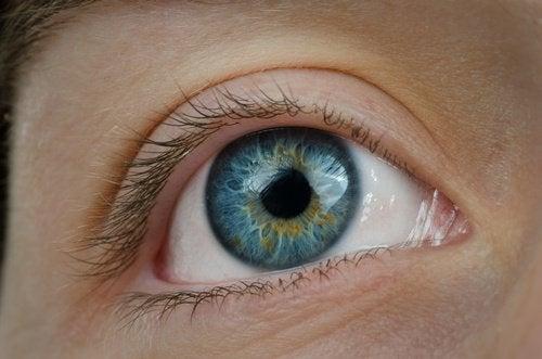 verkkokalvon-ikarappeuma heikentää näköä