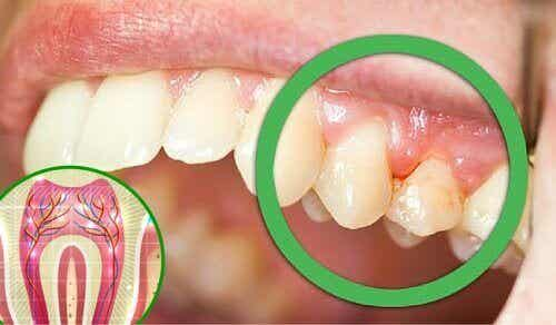 6 syytä hammaskivulle