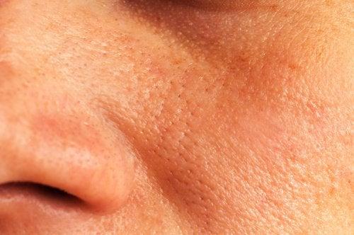 Luonnollisia hoitokeinoja suurentuneille ihohuokosille