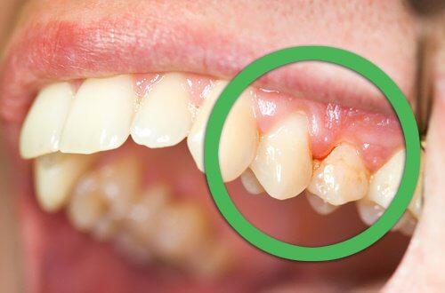 6 syytä hammaskivulle: ientulehdus