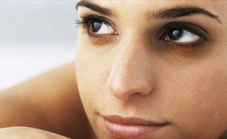 naisella tummat silmänaluset