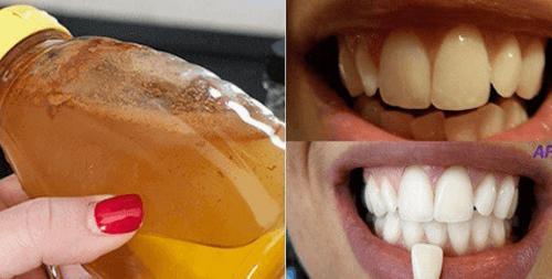 Valkaise hampaat luonnollisesti omenaviinietikalla