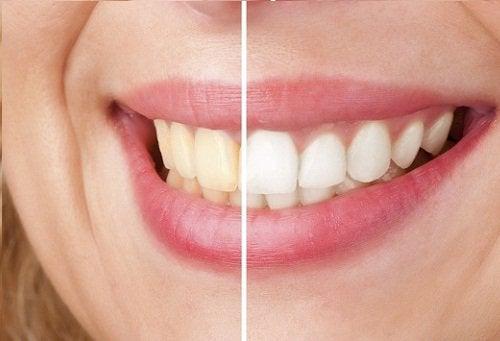 valkaise hampaat omenaviinietikalla