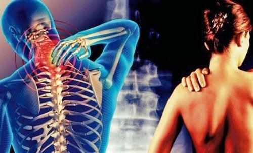 Cervicobrachial Syndrome: niskasta käsivarsiin säteilevä kipu