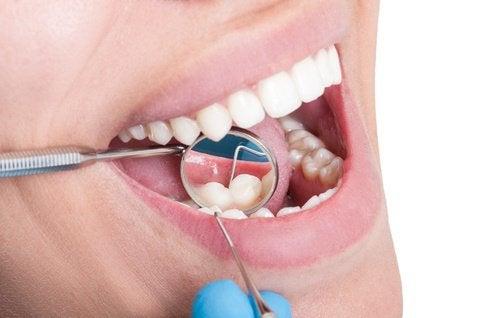 vihreän teen hyödyt hampaille