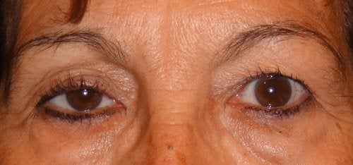 ulkoiset tekijät vaikuttavat silmien kuntoon