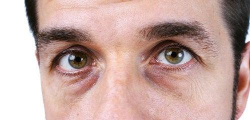 4 luonnollista ratkaisua tummille silmänalusille