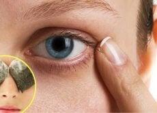 Tummat silmänaluset