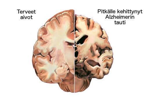 Alzheimer on salakavala sairaus, joka vaikuttaa aivoihin.