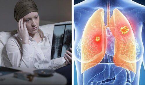 Keuhkosyöpä tappaa enemmän naisia