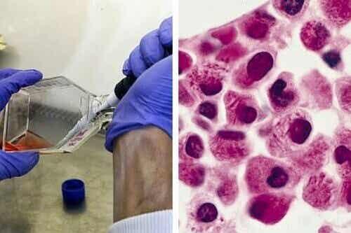 Uusi läpimurto: leukemiasolut voivat tuhota itse itsensä