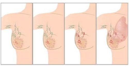rintasyöpä leviää