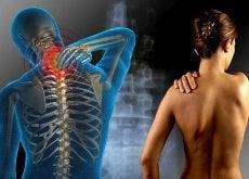 Fibromyalgia selkäkipu