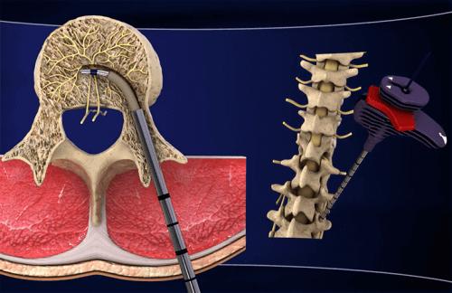 Intracept ja selkäranka