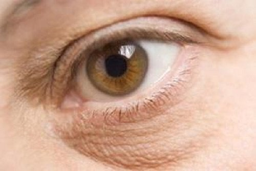 10 stressin haitallista vaikutusta ulkonäköösi - silmäpussit.