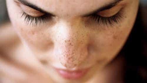 6 tapaa häivyttää kasvojen tummia läiskiä