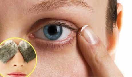 Häivytä tummat silmänaluset 5 luontaishoidolla