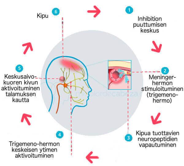 keskushermosto - naisten sairaudet