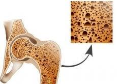 Osteoporoosi luut