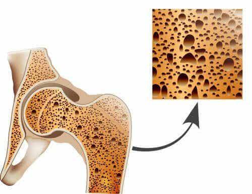 Taistele osteoporoosia vastaan näillä luonnollisilla keinoilla