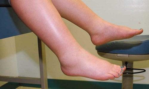 turvotus jaloissa