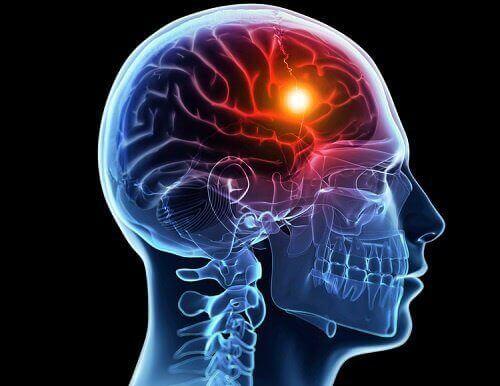 8 kehon varoitusmerkkiä aivohalvauksesta